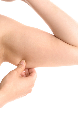 divorced woman droopy tricep muscle